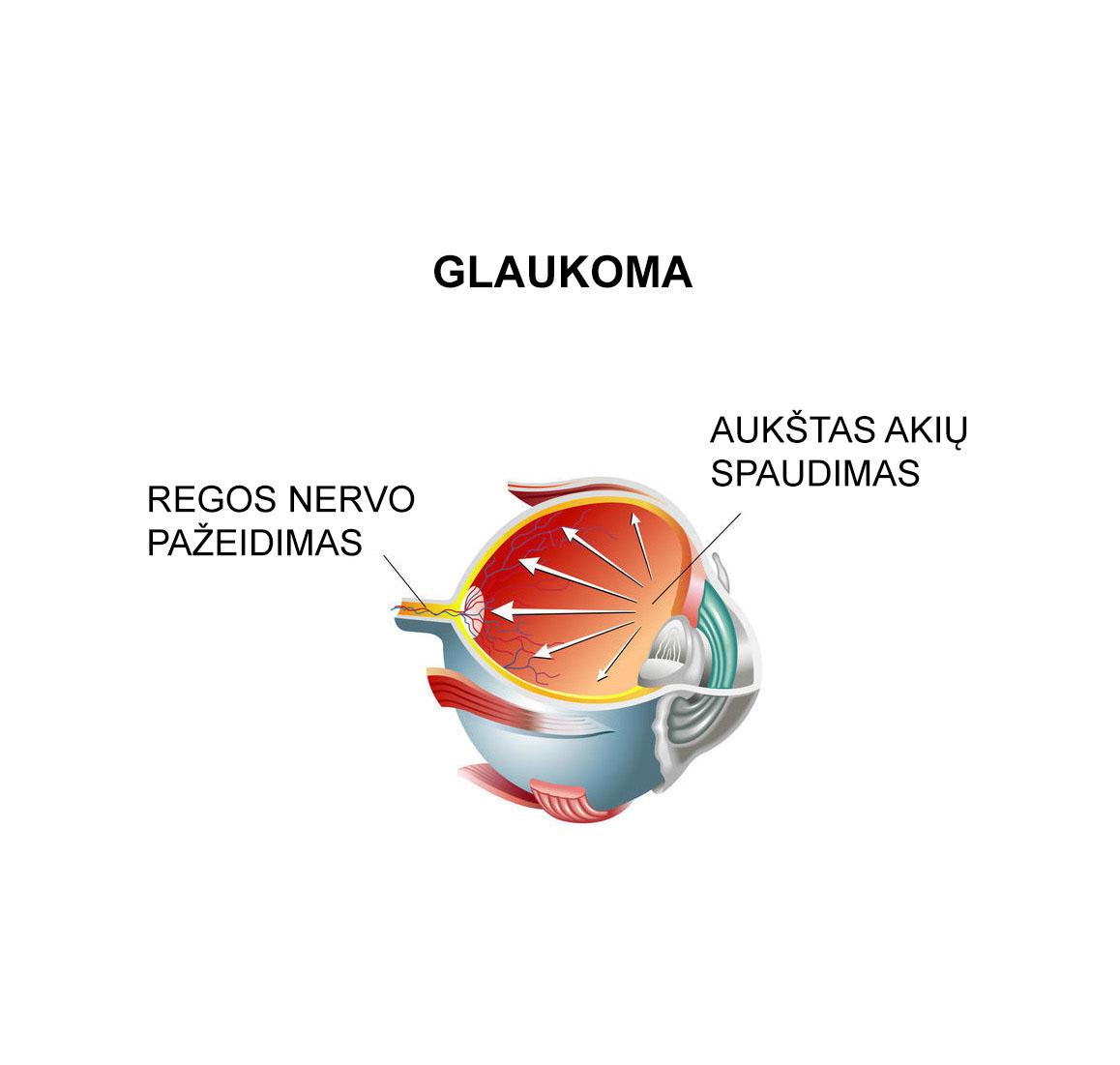 Glaukomos požymiai