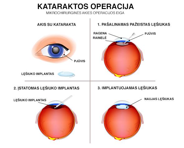 Kataraktos operacijos eiga
