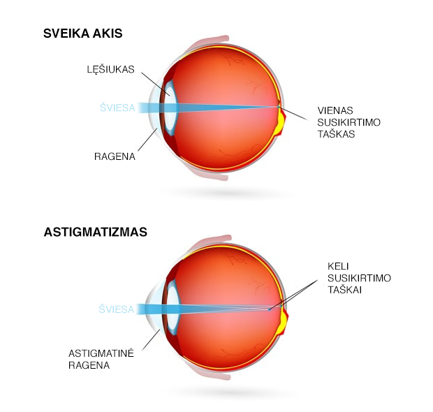 astigmatizmas - akių liga