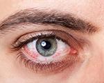 konjunktyvitas-akis-150