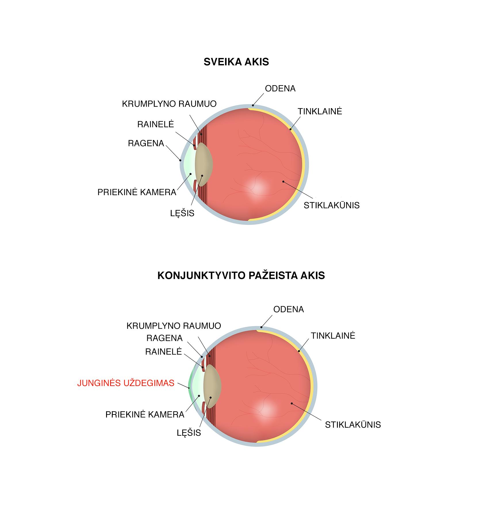 Konjunktyvitas - sveika ir konjunktyvito uždegimo pažeista akis