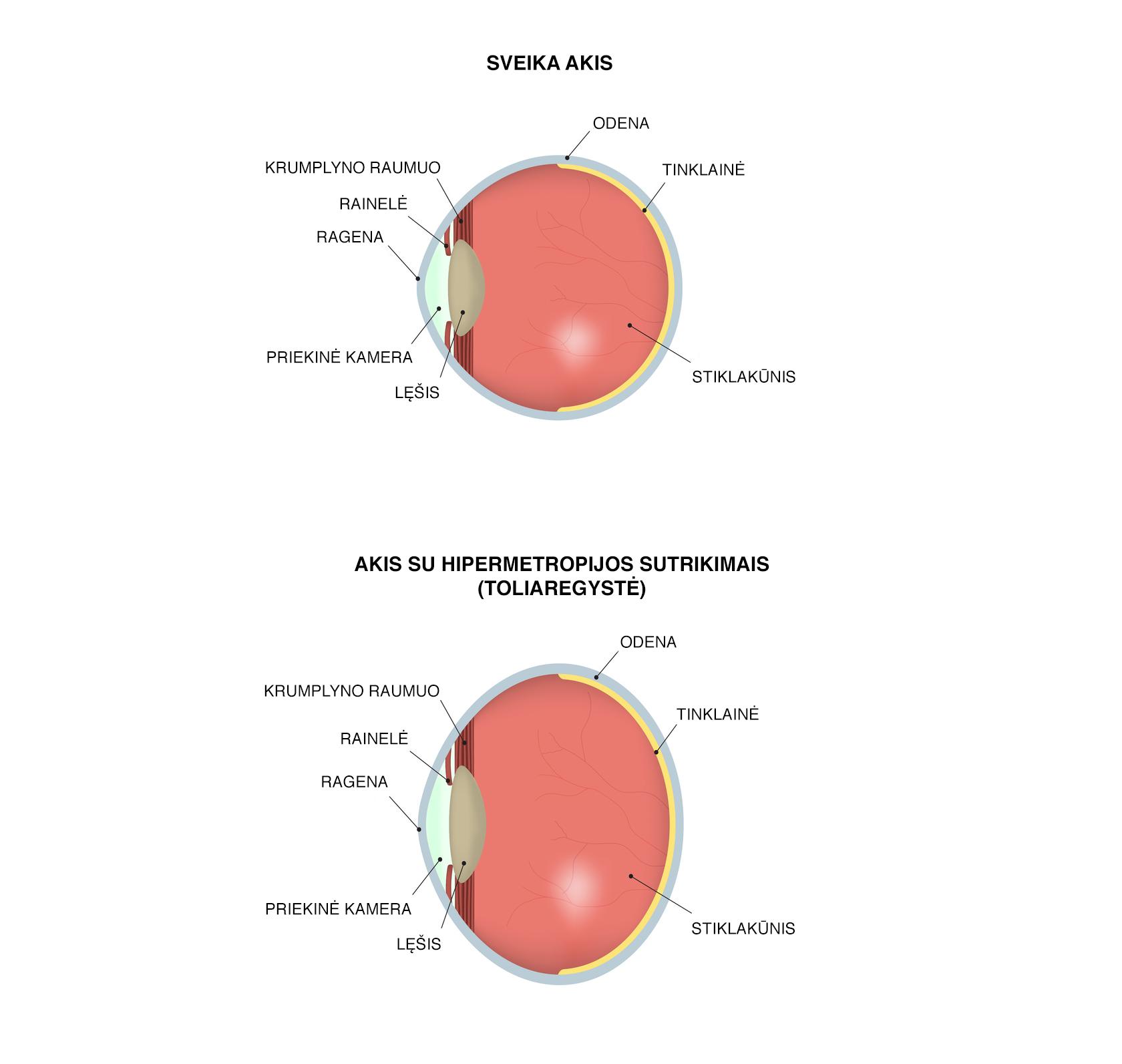 Sveika akis ir akis su toliaregystės (hipermetropijos) sutrikimais
